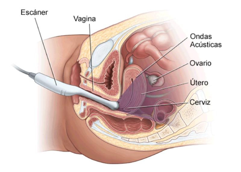 Ecografia pélvica transvaginal